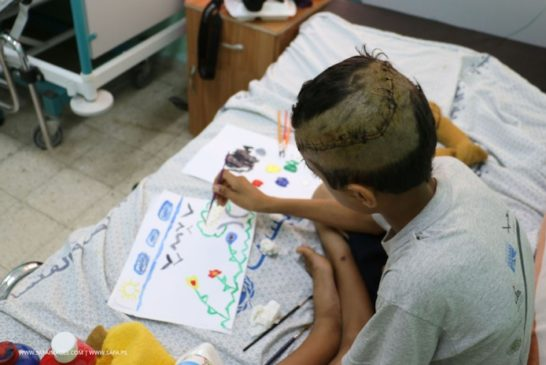 A ten-year-old Palestinian boy Khaled Shalat, paints at a hospital bed, in Deir al-Balah in Central Gaza Strip
