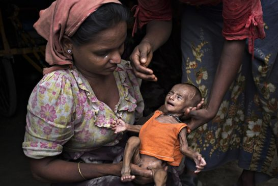Rohingya Refugees Face Health Crisis As Myanmar Cuts Off Aid