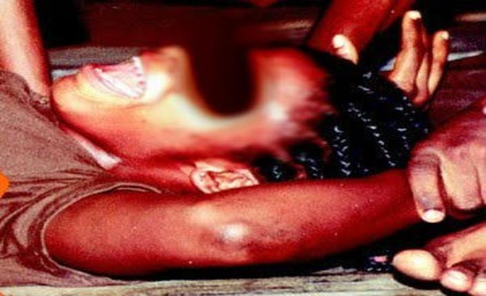 01 mutilazioni  genitali femminili2