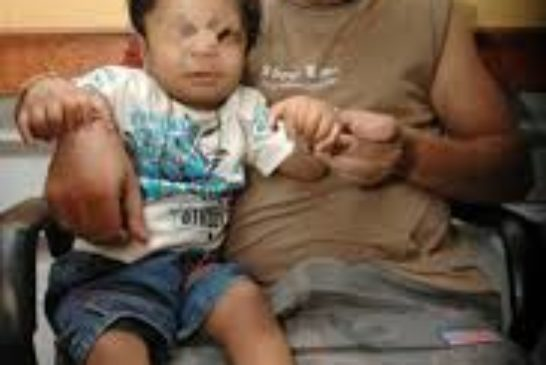 Bhopal conseguenze