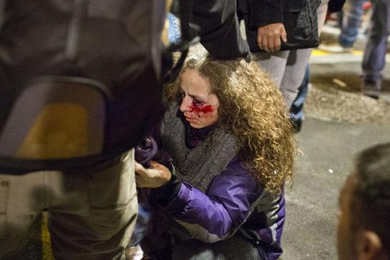 02 donna ferita ad un occhio da una pallottola di gomma