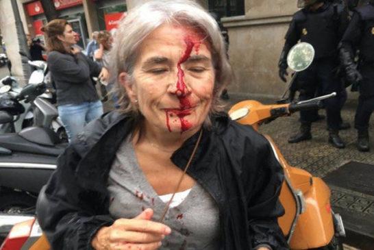 03 donna ferita da una pallottola di gomma