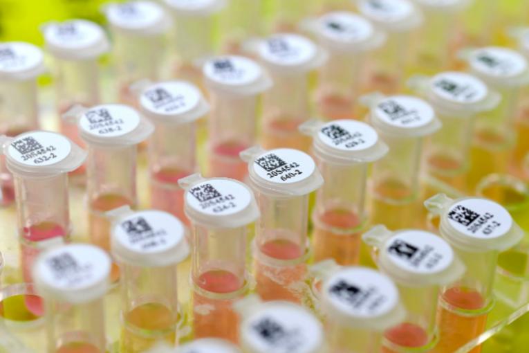 Coronavirus, ma quanto ci vuole a sfornare un vaccino?